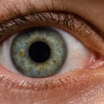 Какво е глаукома
